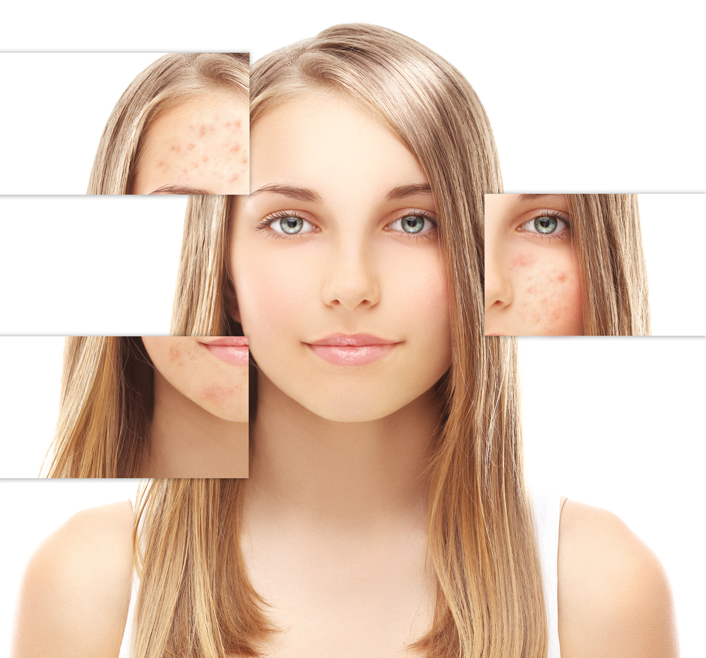 Acne Marks Treatment - How to get rid of acne marks fast and naturally